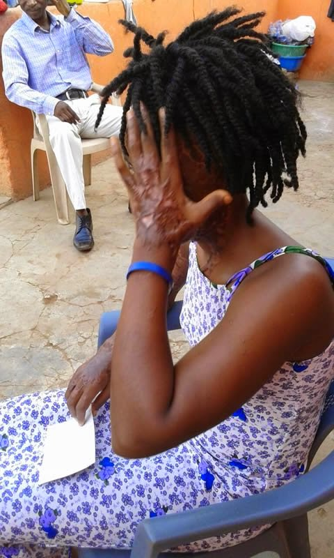 Photo of Acid attack: 22-year-old lady severely burnt, loses eye after ex-lover sprays her with acid